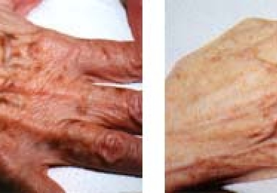 Laser therapy for removal of pigment spots, vascular lesions, port